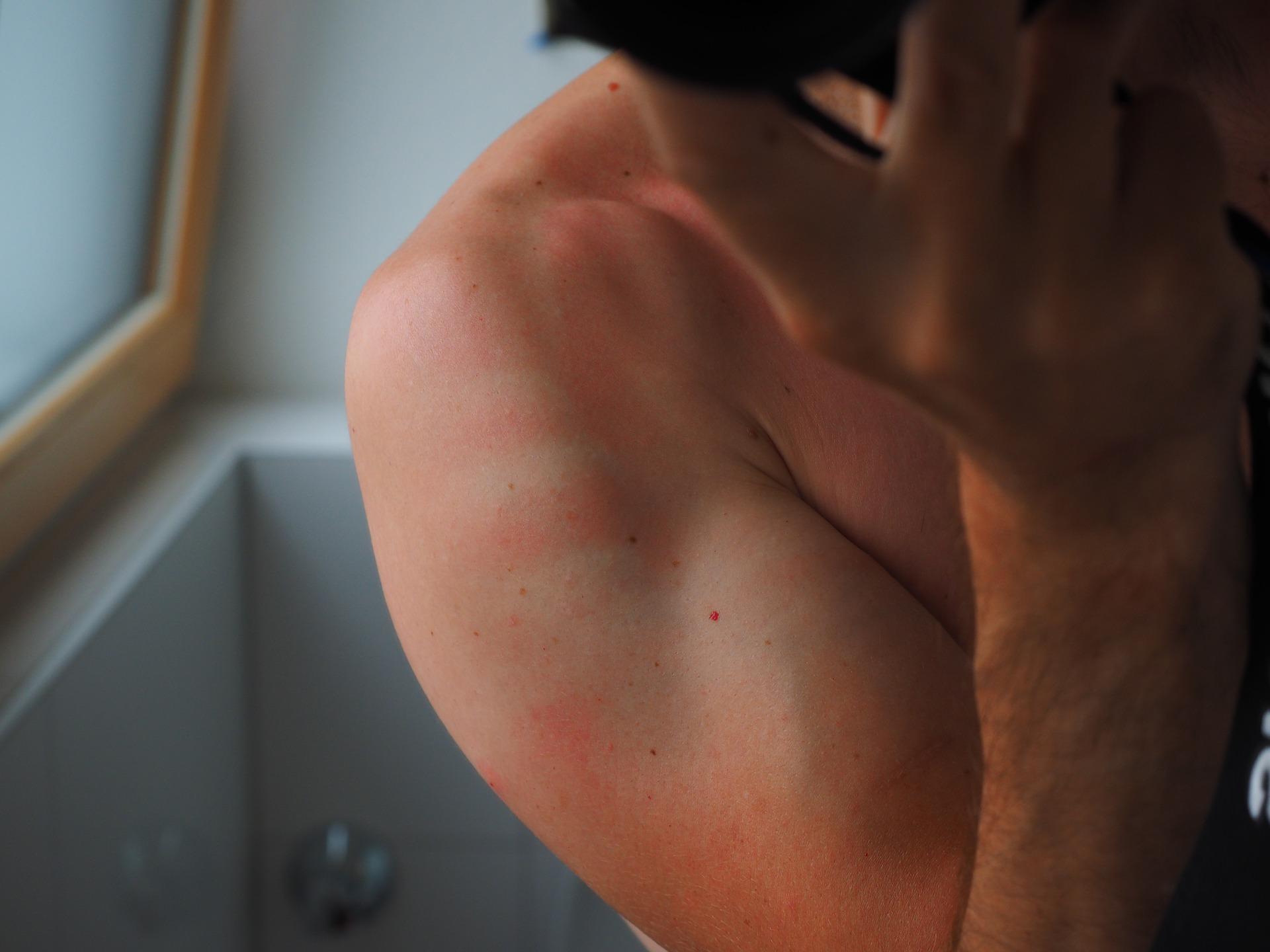 What is a Sunburn